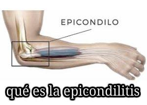 qué es la epicondilitis